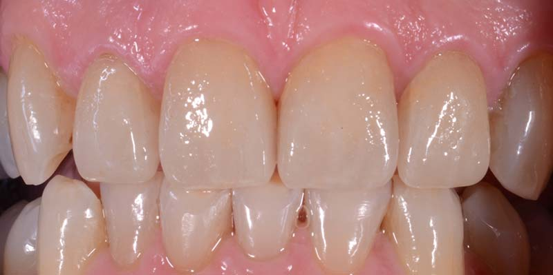 Anterior 4 Crowns After