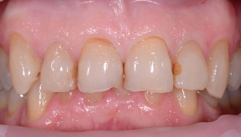 Anterior 4 Crowns Before