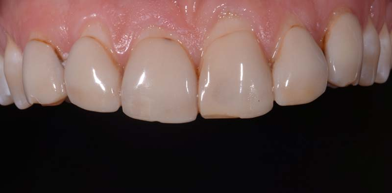 Anterior 6 Emax Veneers Before