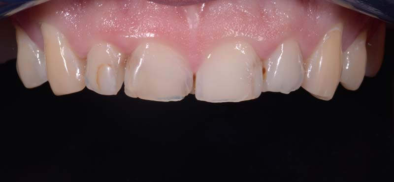 Anterior 8 Empress Veneers Before