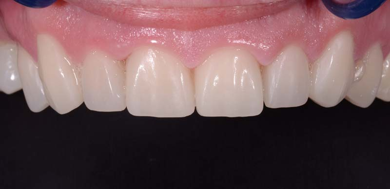 Anterior 8 Empress Veneers After