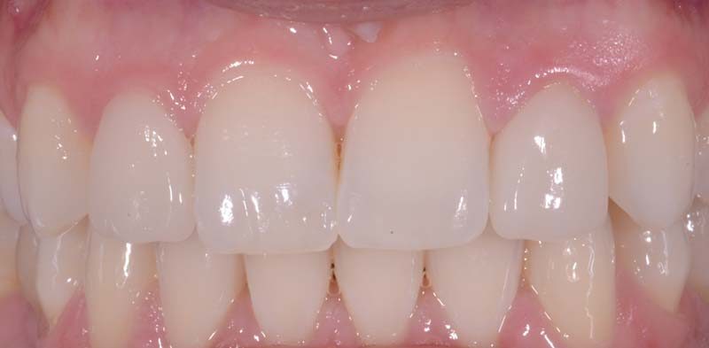 Lateral Incisors After