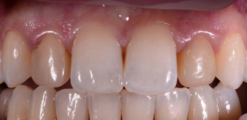 Lateral Incisors Before